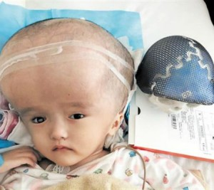 3D printed skull implanted in 3-year-old Chinese girl