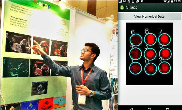 A 20-year-old Indian developed an android application for cancer bio-marker detection